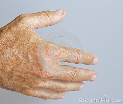 A picture of swollen male hand