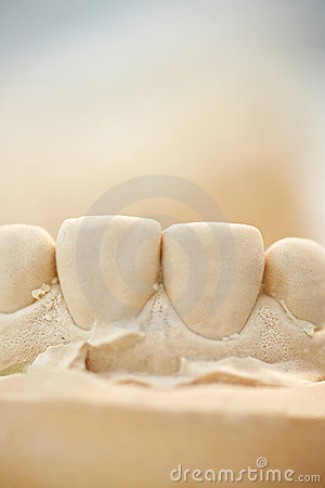 Plaster cast of front teeth
