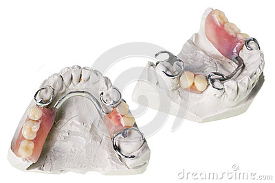 Plaster cast of  teeth and dentures