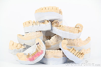 Plaster model of teeth