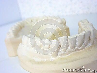 Plaster teeth