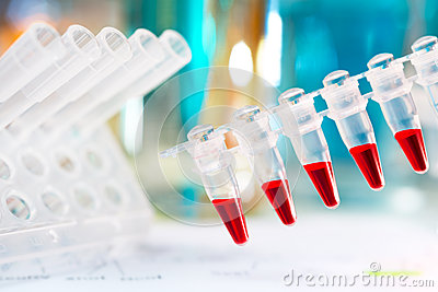Plastic tubes prepared for amplification of DNA