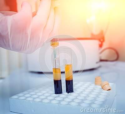 Free Platelet-Rich Plasma Preparation. Plasma In Syringe. Centrifuge. Stock Images - 103427144
