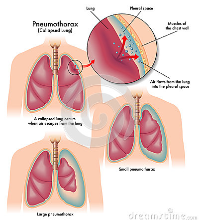 Free Pneumothorax Royalty Free Stock Photography - 47808847