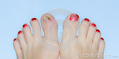 Polished toes with injury