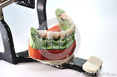 Porcelain teeth on prosthesis ceramic model
