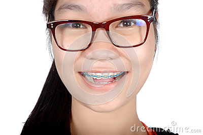 Portrait of asian young girl with glasses and braces