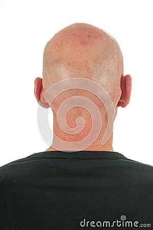 Portrait backside bald man