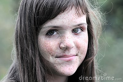 Portrait of freckled girl