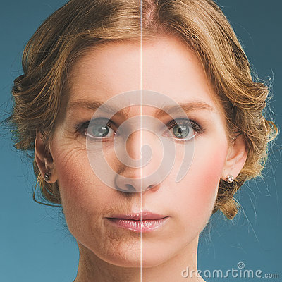 Free Portrait Of A Woman Before And After Botox. Young And Old Face. Stock Photos - 43702163