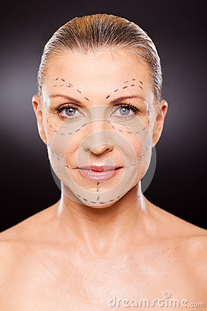Senior plastic surgery