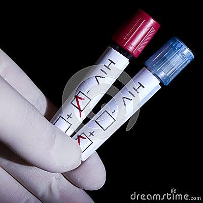Positief en negatief HIV