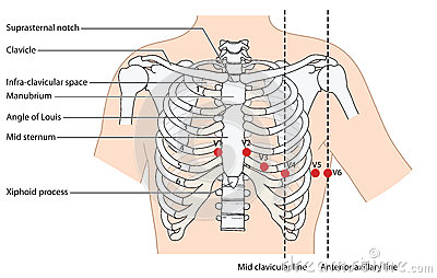 Stock Illustration Position Ekg Leads Placement Ecg Showing Ribs Sternum Mid Clavicular Line Anterior Axillary Line Created Image61193105