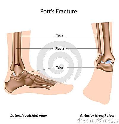 Pott fracture