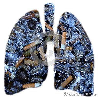 Poumons de fumeurs