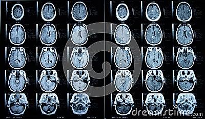 Pre/Post Contrast Brain MRI