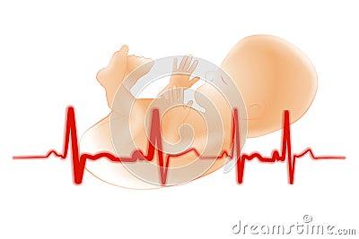 Premature Baby Fetus Electrocardiogram