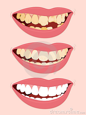 Progressive Stages Of Tooth Decay caries