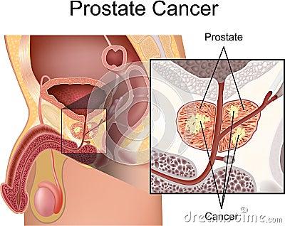 Prostate Cancer Royalty Free Stock Image Image 25197566