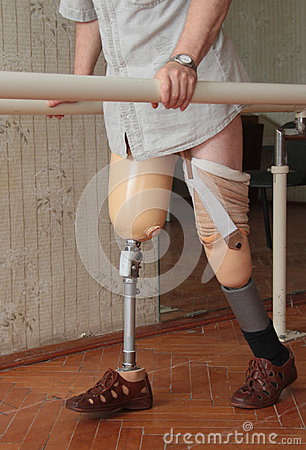 Free Prosthesis Stock Images - 45689044
