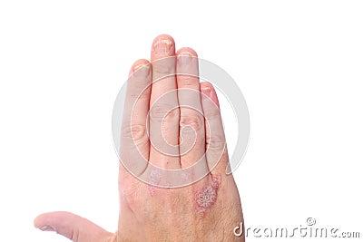 Se il fungo su unghie di gambe non passa