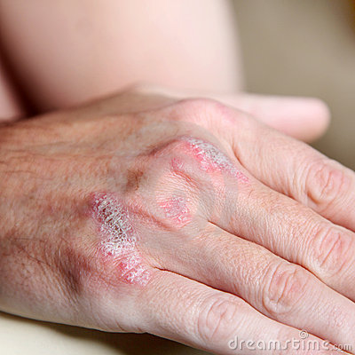 Psoriasis on the hand bones - close-up