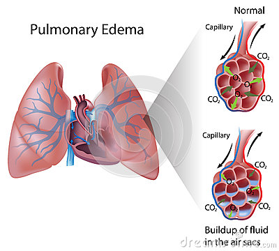 Free Pulmonary Edema Stock Images - 27538544