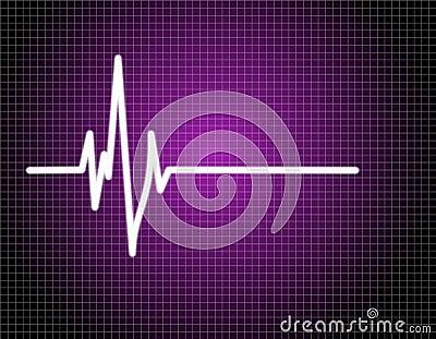 Pulse EKG (ECG)