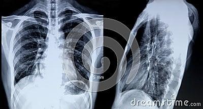 Röntgenstrålebild av bröstkorgen