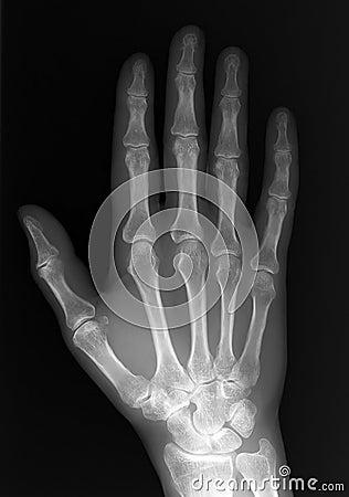 Röntgenstrahl der Hand