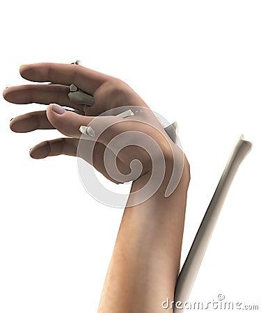 Ręka okropny Uraz