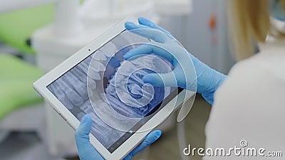 Radiografía de los dientes en un dispositivo portátil almacen de video