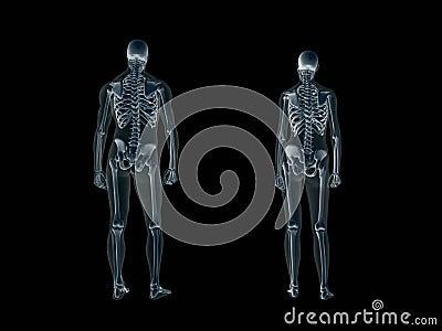 Radiografía, radiografía del cuerpo humano, hombre y mujer.