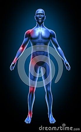 Radiografía médica de la inflamación del dolor común del cuerpo humano