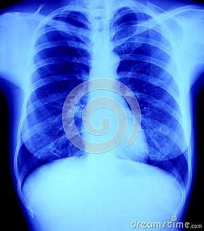A radiografia normal do raio X da caixa, pulmão e ouve-se