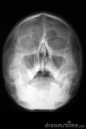 Radiographic view of the skull (head radiologram)