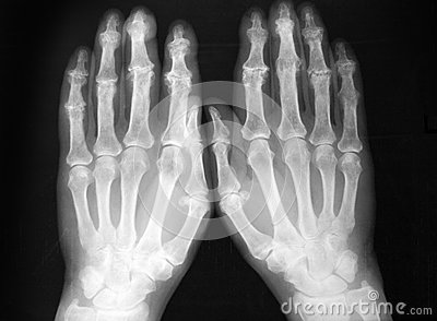 Radiography, of both hands, sever arthritis