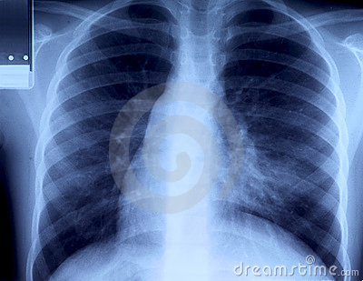 Radiography of chest