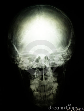 Radiography of skull