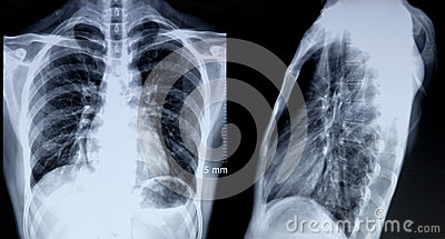 Radiologiczny wizerunek klatka piersiowa