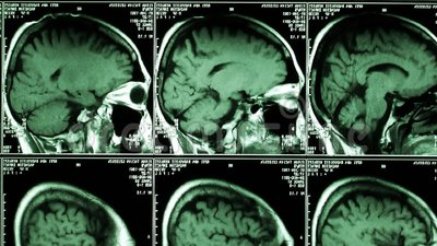 radiologiczny Zredukowany anatomia widok zdjęcie wideo
