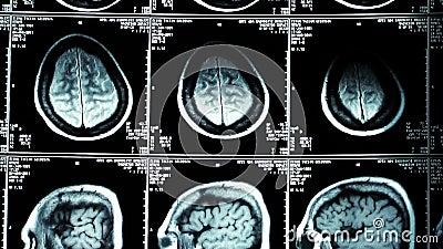 radiologiczny Zredukowany anatomia widok zbiory wideo