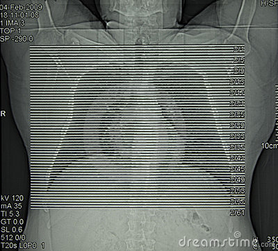 Radiology, computed tomography of chest