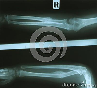 Free Radius Fracture Stock Photo - 14298600