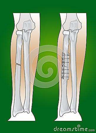 Radius fracture surgical intervention