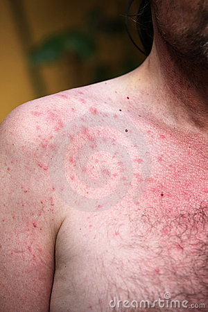 Rash or sun allergy stock photography image 14962602 for Allergic reaction to hot tub