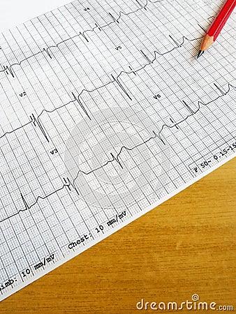 Reading medical ECG chart