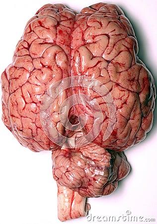 real-brain-thumb146097.jpg