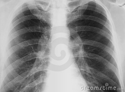 Real-world chest X-ray with symptom of chronic bro