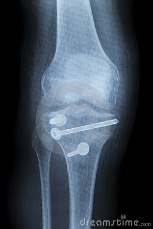 Reconstruction of a right human knee after crash